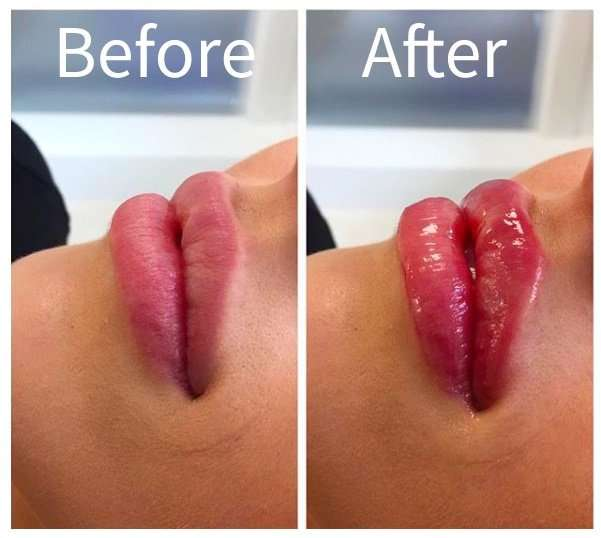 lip-filler-before-after
