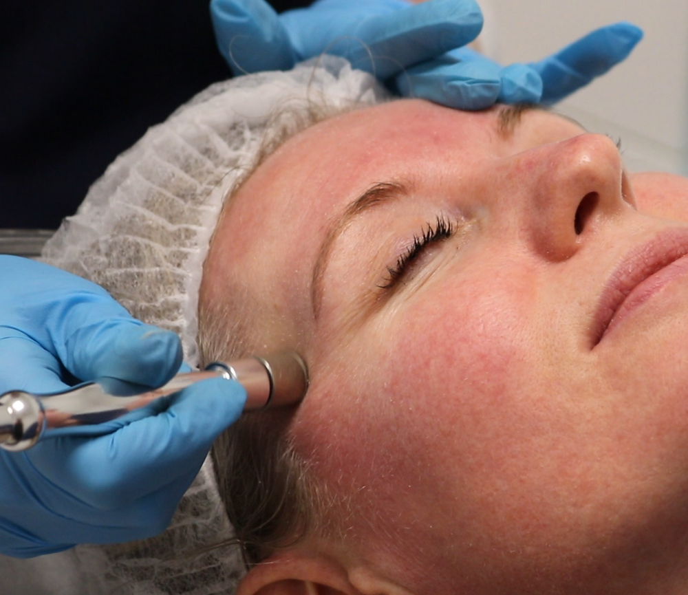 Mircrodermabrasion at Clearskin Clinic Dublin