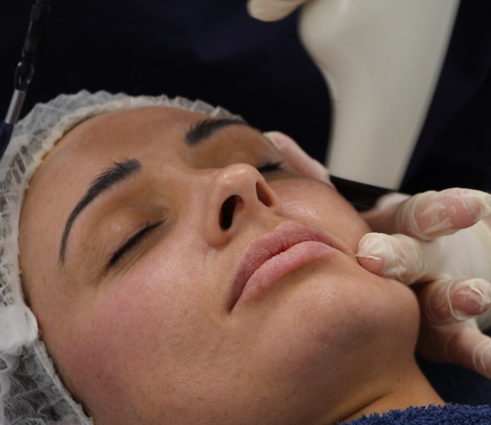 RF Skin Tightening at Clearskin Clinic Dublin