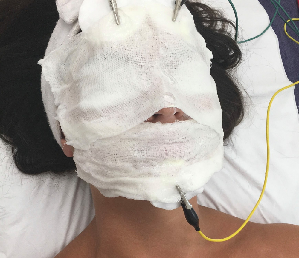 The Vitamin Infusion Facial at Clearskin Dublin