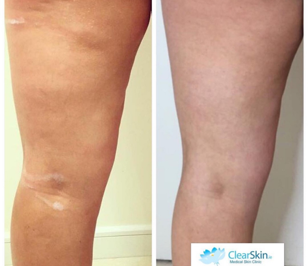 Velashape Treatment before and after